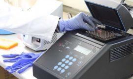 Alexandra Hospital acquires PCR machine to perform COVID-19 testing